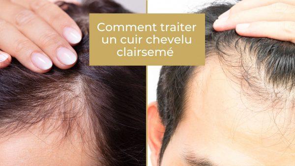 Comment traiter un cuir chevelu clairsemé?
